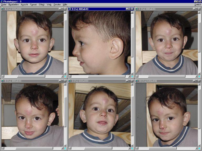Der 3jährige Sungur nach der Krankenhauskonsultation - wenigstens einer der lachen konnte